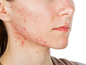 Irish study : Acne stigma linked to lower overall quality of life
