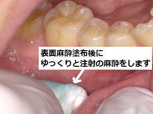痛くない麻酔 石狩 うらた歯科