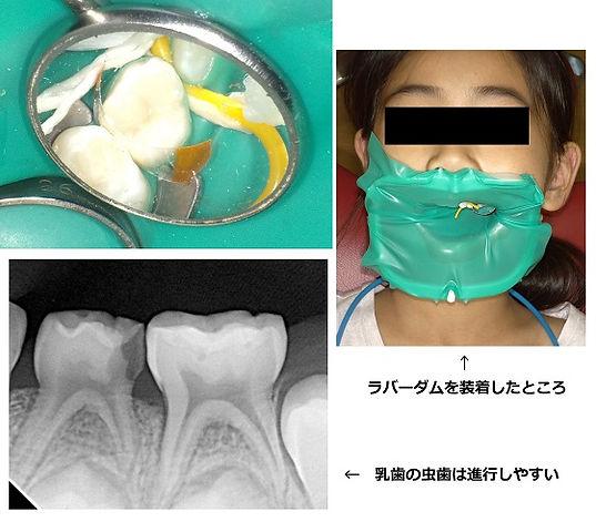 小児歯科   ラバーダム.jpg