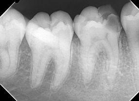根管治療 ラバーダム 石狩 うらた歯科