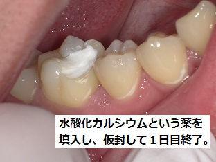ラバーダム 根管治療 石狩 うらた歯科