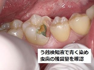 ラバーダム う蝕検知液 石狩 うらた歯科