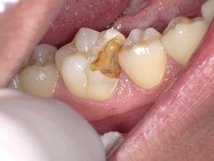 ラバーダム 石狩 うらた歯科