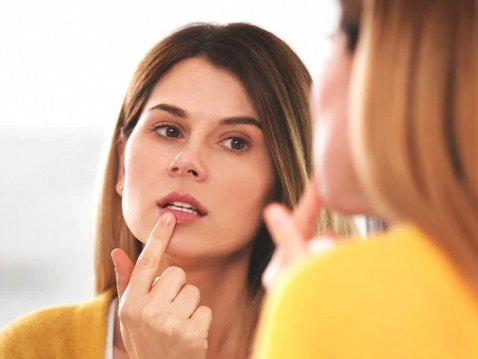 Quick Natural Remedies for Cold Sore Treatment and Prevention