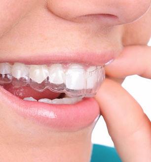 dental-implants-everett-wa_edited_edited.jpg