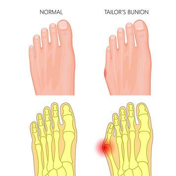 Tailor's Bunion.jpg