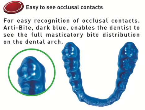 Occlusal Contacts