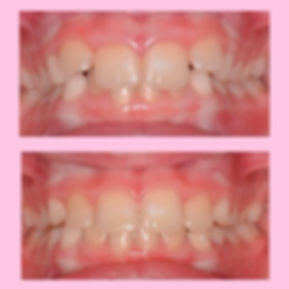 BEFORE-AND-AFTER-3.jpg