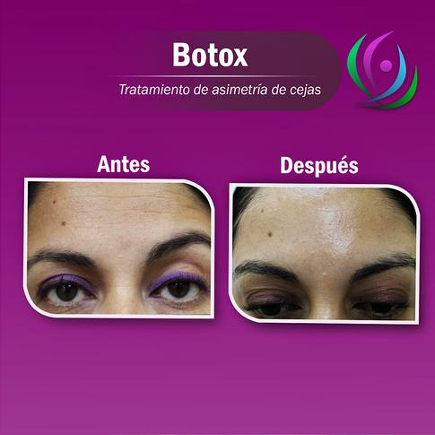 Botox_para_asimetría_de_las_cejas_-_(Par