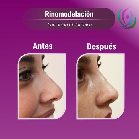 MD - Rinomodelación con ácido hialurónic