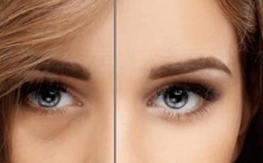 tear-trough-filler-advanced-cosmetic-med
