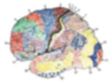 Aphasia, stroke, brain injury, brain tumour, speech therapy, cape town