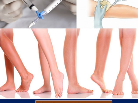 Venous Sclerotherapy for unwanted and Abnormal Veins
