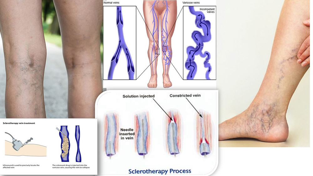 Sclerotherapy-a treatment for varicose veins and spider veins
