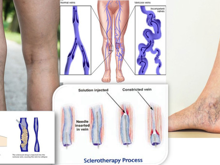 SCLEROTHERAPY- A MEDICAL PROCEDURE TO ELIMINATE VARICOSITIES AND ABNORMAL VEINS