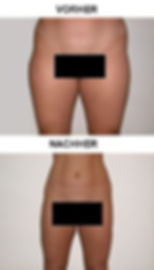 Körpermodelling_1.jpg