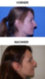 Nasenkorrektur 3a.jpg