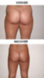 Körpermodelling_2.jpg