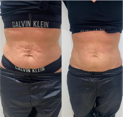 HIFU Skin Tightening Treatment
