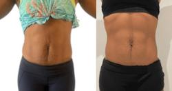 Skin Tightening Results