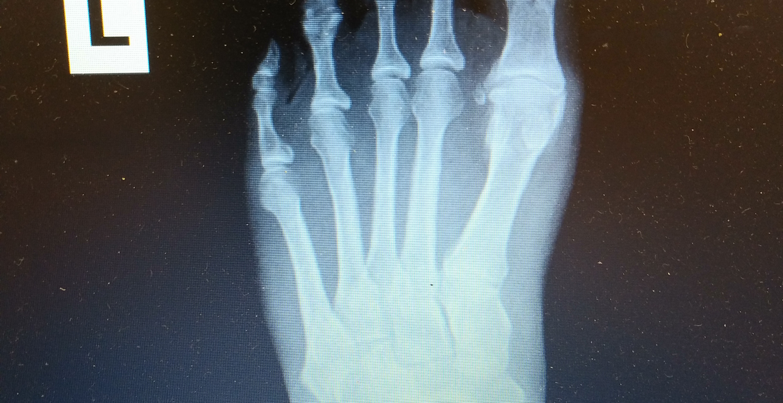 Big toe arthritis with complete loss of joint space