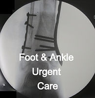 ankle%2BORIF_edited.jpg