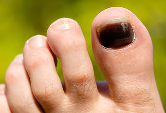 Black Colored Toe Nail
