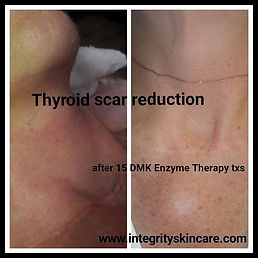 Enzyme therapy to reduce scars