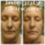 facial contour masshe is a form of fascia release to release tension in the skin