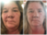 Comprehensive treatments on Bell's Palsy