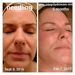 microneedling programs to build collagen and reduce the appearance of acne scars