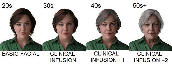 Age Management Chart at Integrity Skin Care