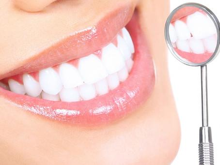 Diş beyazlatma zararlı mıdır?