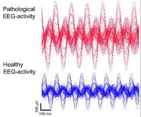알츠하이머병 치료를 위한 최적의 개인화된 두뇌 자극 연구