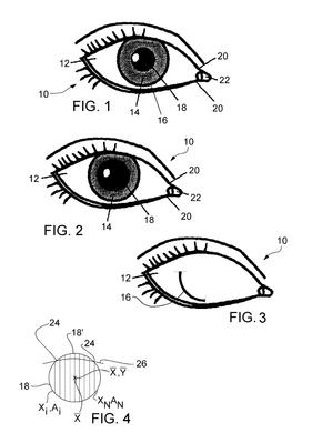 Neuro Kinetics, 정밀 Eye-Tracking 기술 특허