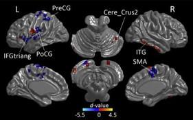 삼차신경자극의 무의식 환자 각성 연구