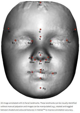 과도하게 남성화된 (Hypermasculinised) 얼굴형태와 자폐증과의 관계 연구