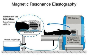MRE 활용 뇌건강 측정 연구