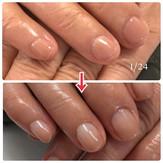 70代でも深爪矯正は可能です。ちゃんと伸びます。綺麗! #mananaふたば #