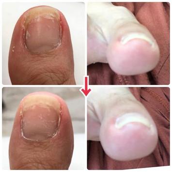 自撮りで向こう側から足の親指にピント合わせるの難しい…。諸般の事情により巻き爪に