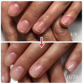 深爪矯正の比較写真を作ってみたよ。ピンクのところがかなり伸びてます。 #深爪 #
