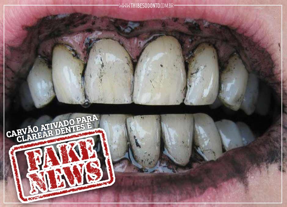Carvao Ativado E Fake News Dentista Cacador Thibes Odontologia