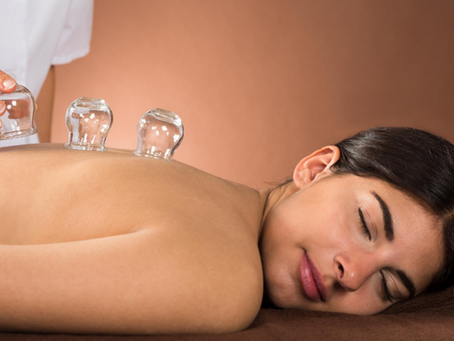 CUPPING — NEW? OR OLD?