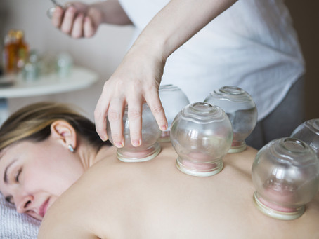 Why you should try cupping