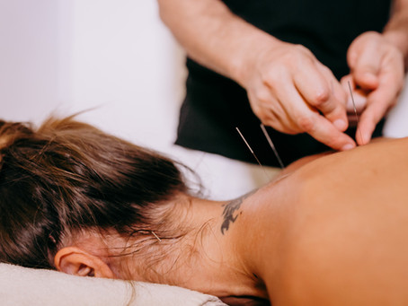 Acupuncture – a wealth of benefits