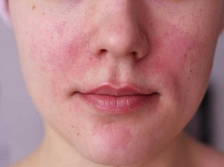 Importante reforzar cuidado de la piel durante el Invierno