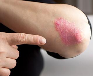 Psoriasis, fundamental detectar y tratar esta enfermedad