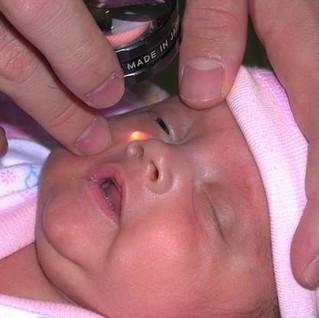 Tamiz oftalmológico, necesario para prevenir la ceguera en niños
