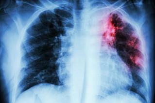 Boehringer Ingelheim y Bridge Biotherapeutics desarrollan medicamentos para Fibrosis Pulmonar Idiopá