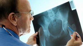 Después de una fractura por osteoporosis ya nada es igual